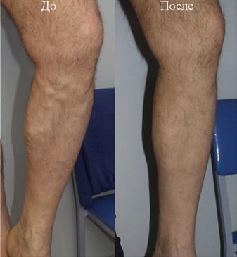 Результат лечения варикозной болезни лазером